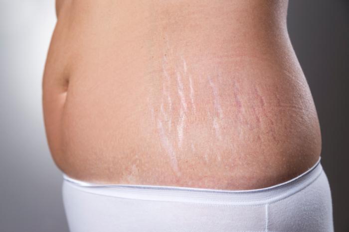 رفع ترک شکم بعد از بارداری
