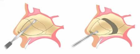 روش ساخت داروی بیهوشی در خانه عمل جراحی انحراف و کجی بینی (صاف کردن تیغه بینی ...